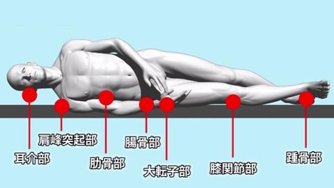 足部・背部の褥瘡ケア | 褥瘡ケア【1】