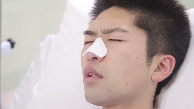 NPPV装着患者さんへの皮膚トラブル予防 | 人工呼吸ケア【8】