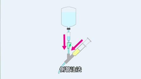 閉鎖式輸液ラインの側管注 | 点滴静脈注射の混注方法【1】