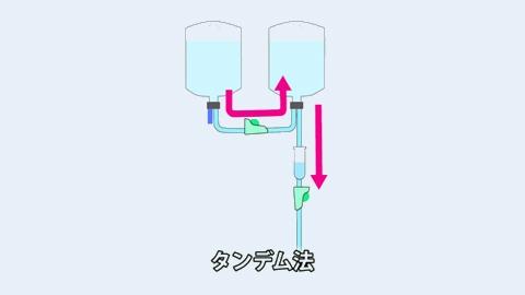 タンデム法 | 点滴静脈注射の混注方法【4】