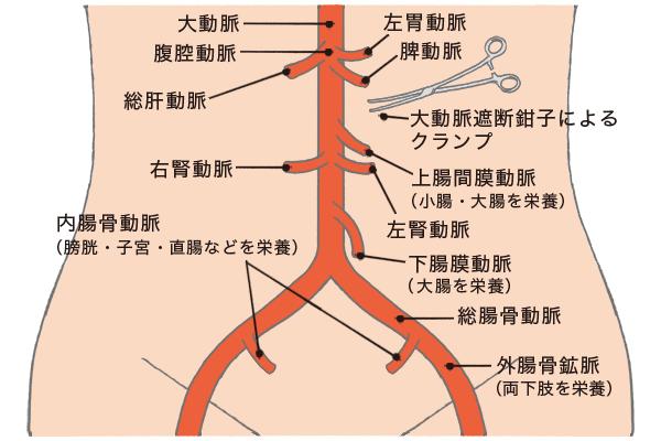 大動脈クランプをするため腹部血管の仕組みを説明する図