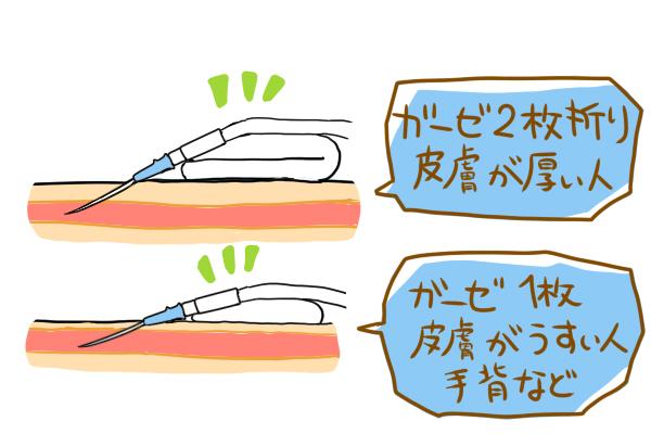 留置針を固定する際、皮膚が厚い人にはガーゼ2枚折りに固定し、皮膚が薄い人・手背などは、ガーゼ1枚で固定しているところを表すイラスト