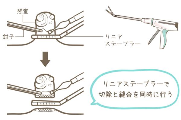 メッケル憩室をリニアステープラーで切除と縫合を同時に行う手術を説明するイラスト