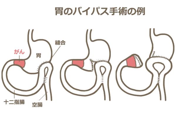 胃のバイパス手術の例