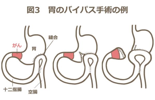 胃のバイパス手術の例を表す図