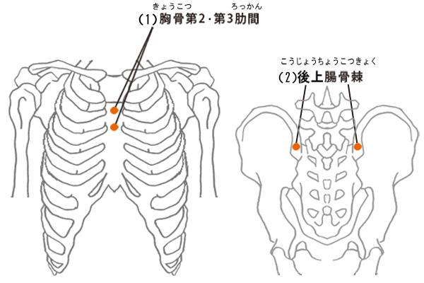 骨髄穿刺するときのポイントを表したイラスト。