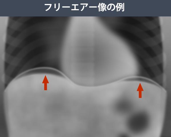 フリーエアー像を説明するレントゲン写真