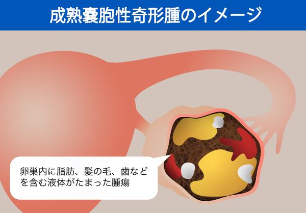 成熟嚢胞性奇形腫