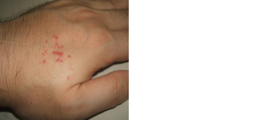 アオダイショウによる咬傷痕