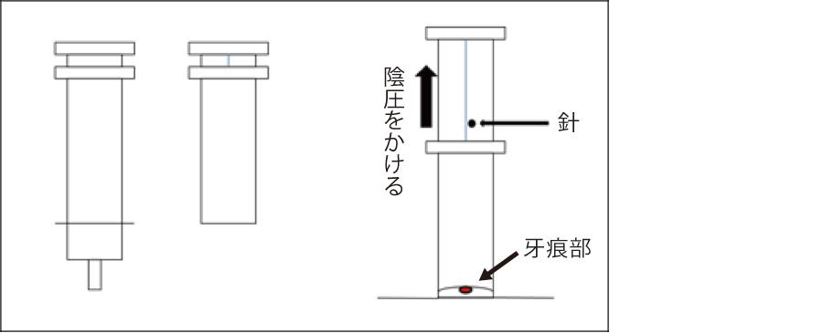 シリンジを使用したヘビ毒持続吸引方法