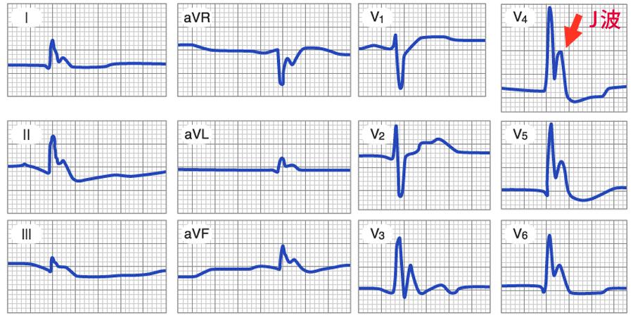 低体温症の心電図_J波_Osborn波