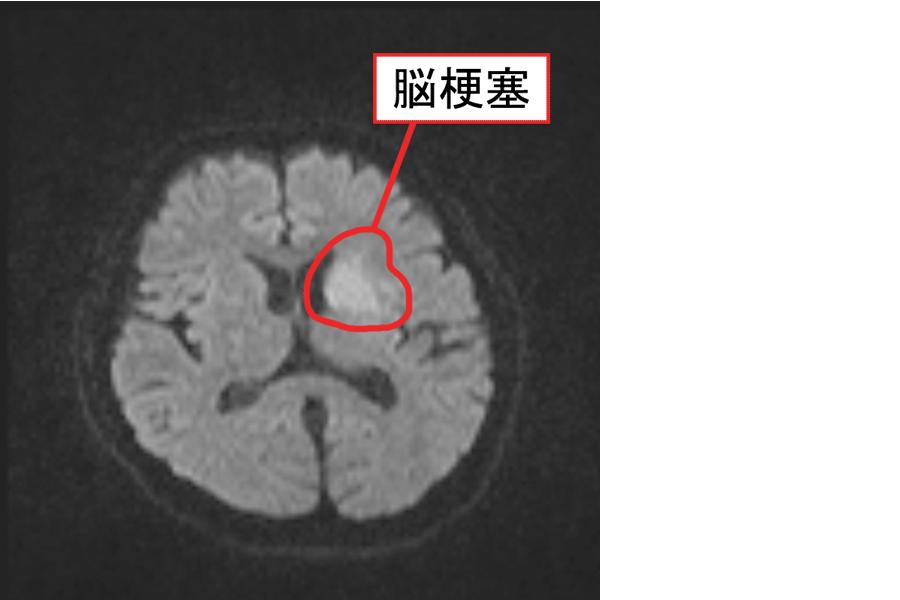 脳梗塞のMRI