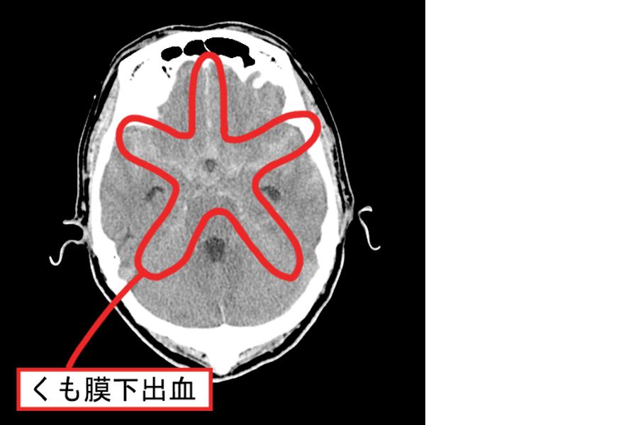 くも膜下出血のCT画像
