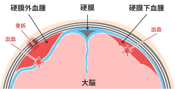 急性硬膜下血腫_急性硬膜外血腫