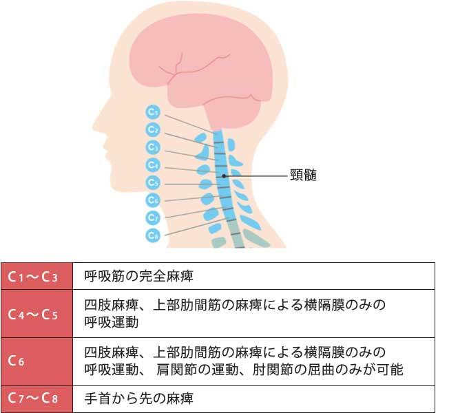 脊髄の部位_損傷部位別の障害