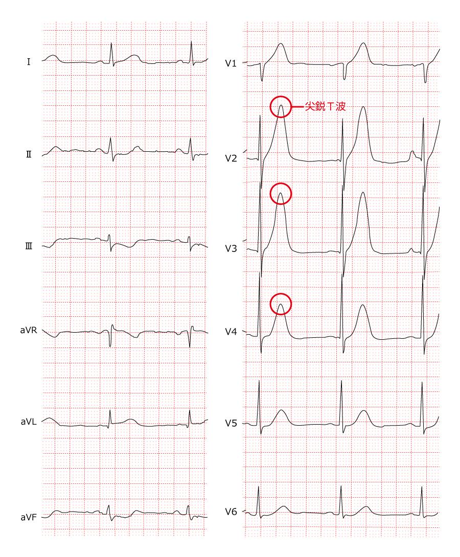 急性心筋梗塞の心電図_前壁中隔_超早期の尖鋭T波