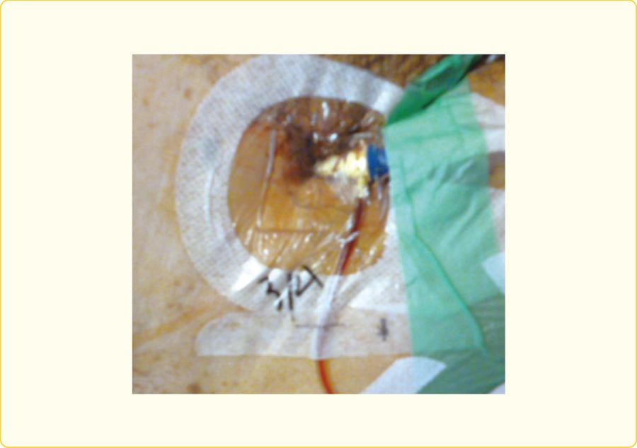 抗菌性フィルムドレッシングを用いたIABP刺入部
