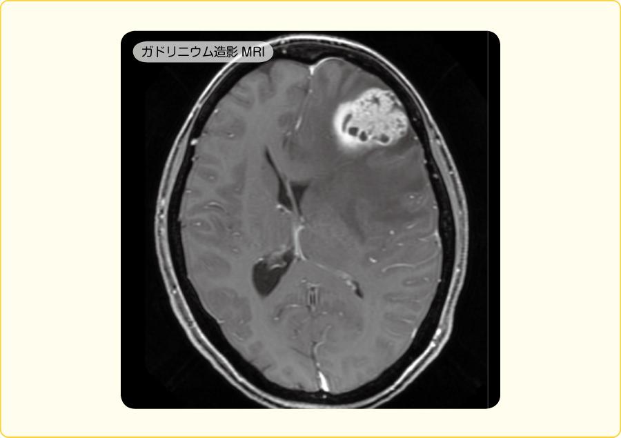 単一の転移性脳腫瘍