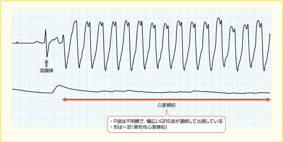 心室頻拍の波形