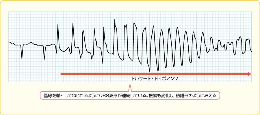 トルサード・ド・ポアンツの波形