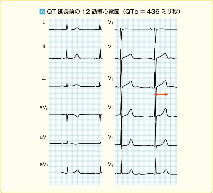 QT延長前後の心電図