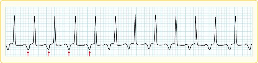心房頻拍の心電図波形