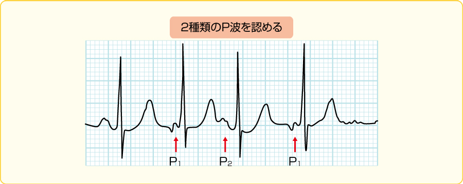 多源性心房頻拍の心電図波形