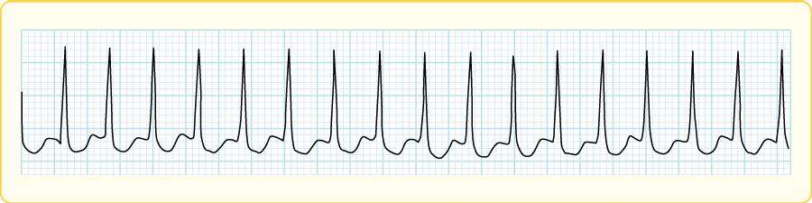 房室結節リエントリー頻拍(AVNRT)の心電図波形