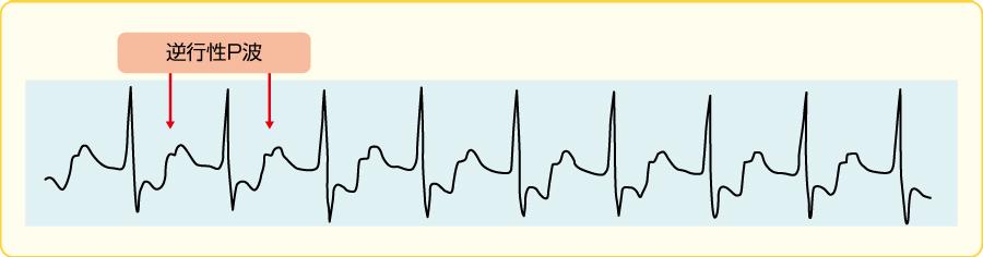 房室リエントリー頻拍(AVRT)の心電図波形