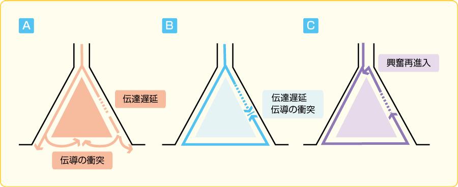 リエントリーの模式図