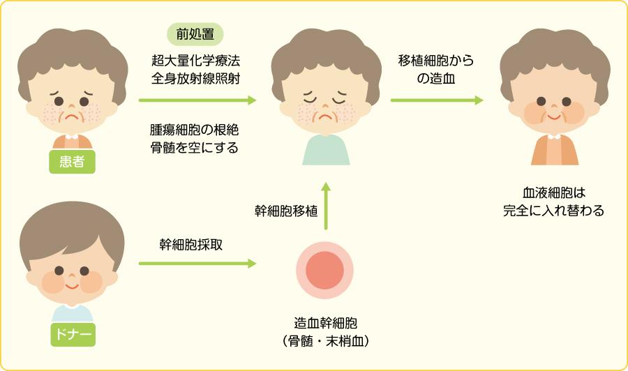 造血幹細胞移植とは