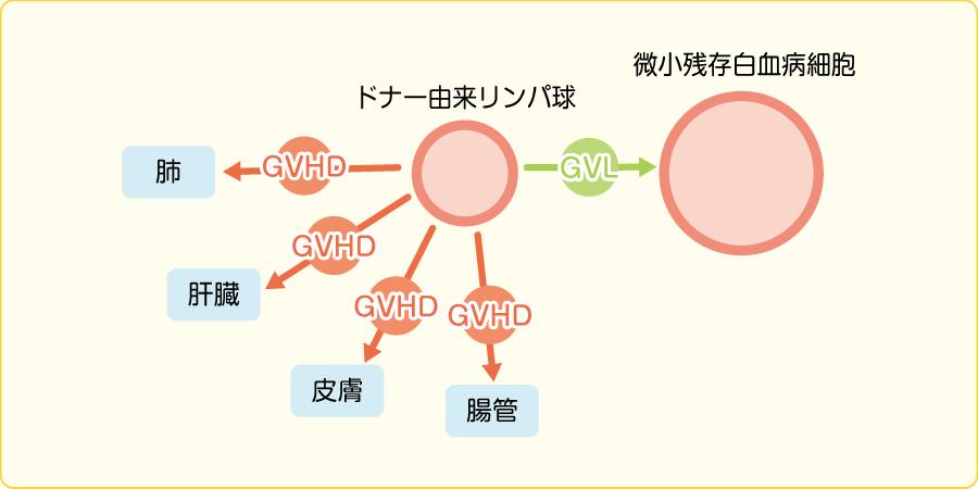 GVHDとGVL効果