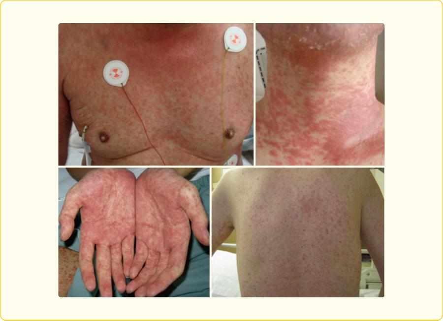急性GVHDの皮膚症状