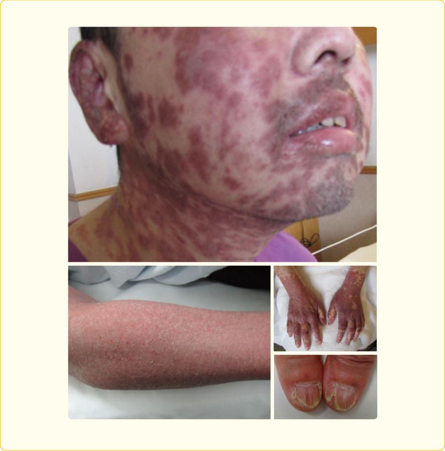 慢性GVHDの皮膚症状