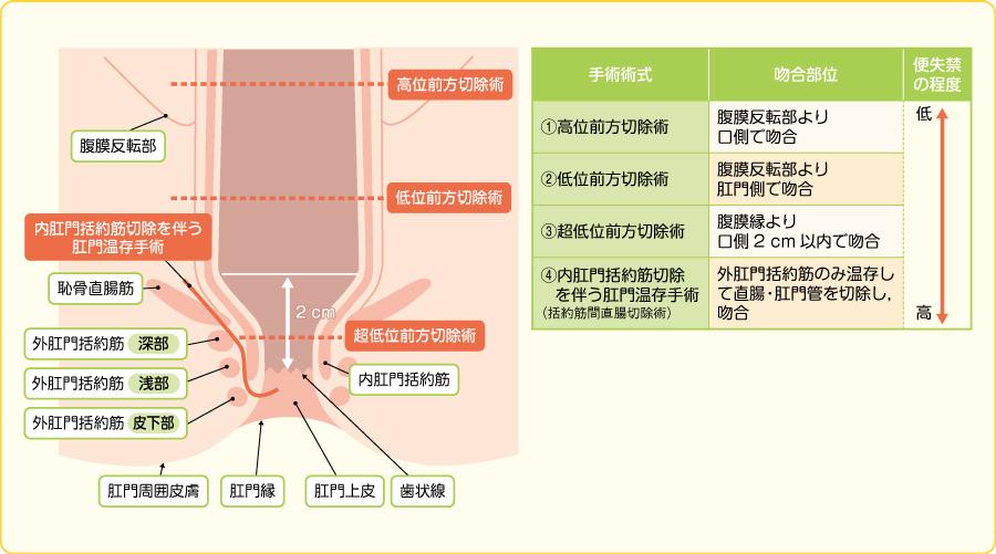 吻合部の高さによる手術術式の呼称と便失禁の程度(文献7)より引用改変)