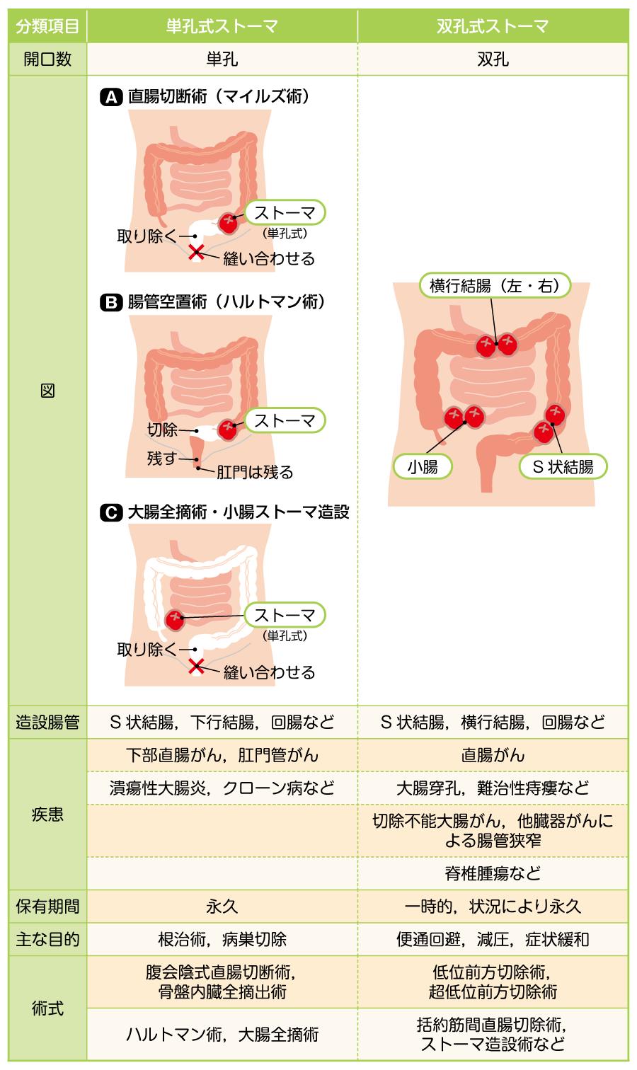 ストーマが造設される疾患・術式とストーマの種類