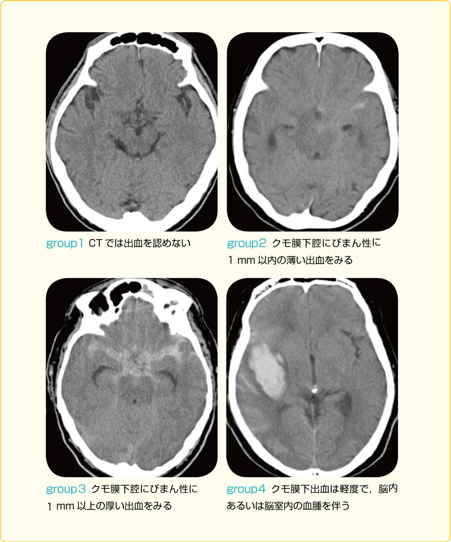 脳動脈瘤の分類