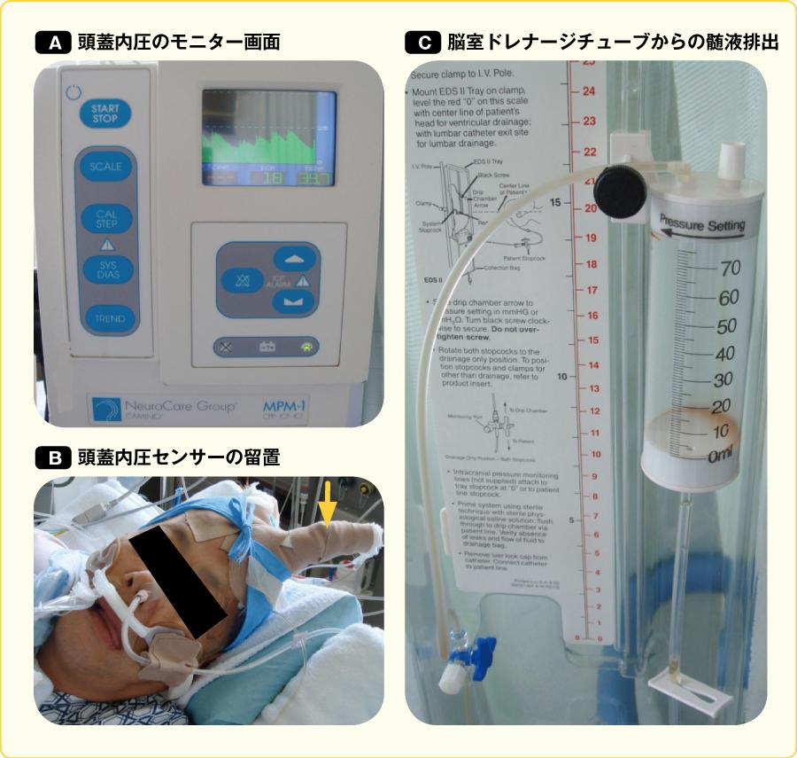 頭蓋内圧センサーによる持続頭蓋内圧測定