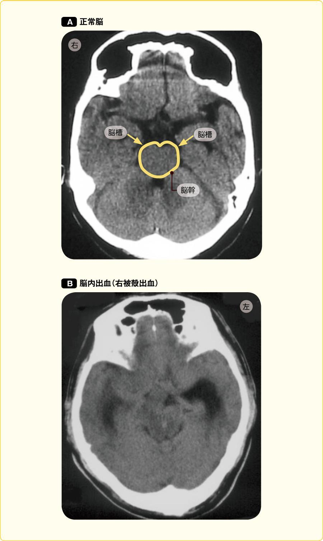 頭蓋内圧亢進のCT像