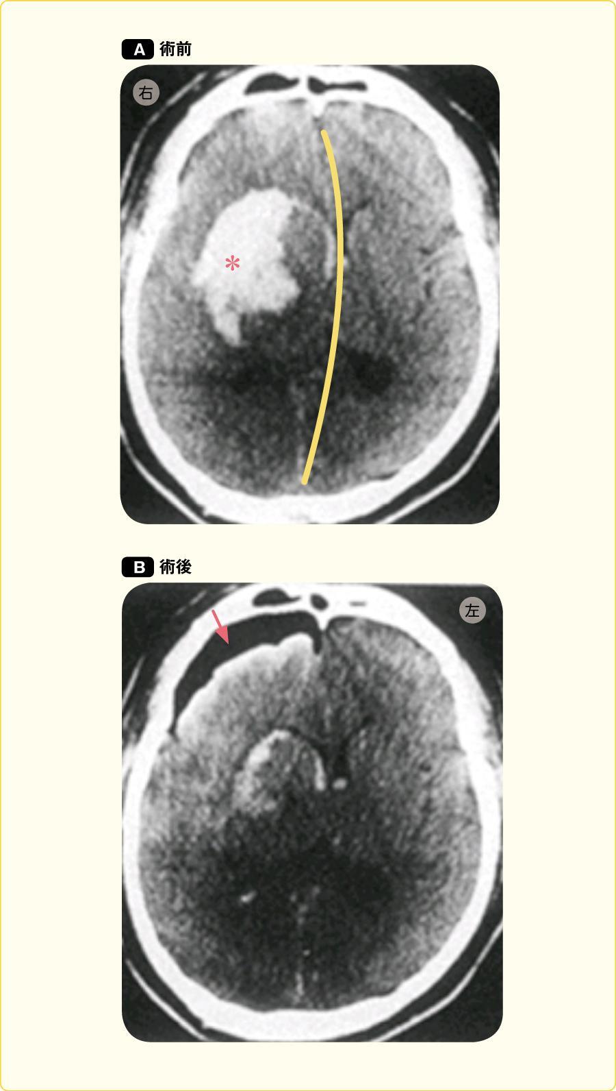 右被殻出血の症例