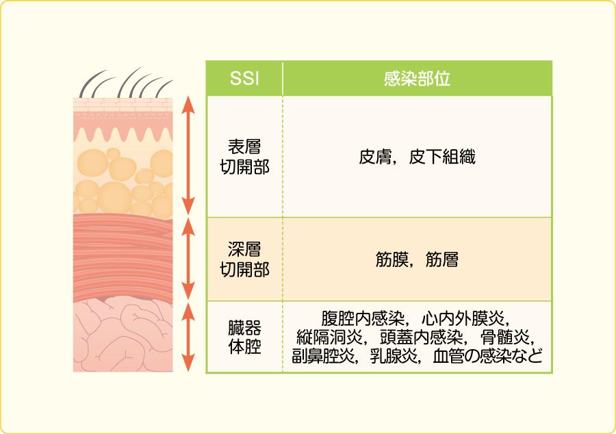 SSIの定義