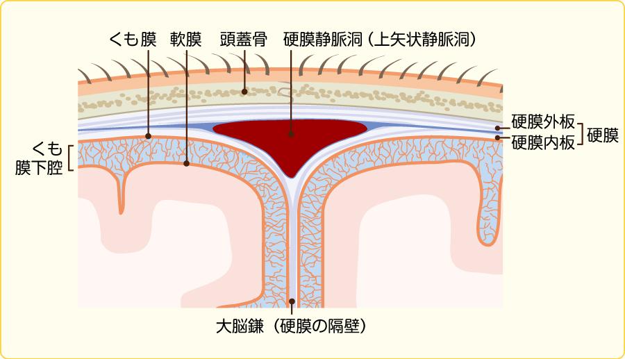 頭蓋の髄膜:頭部上方の冠状断面