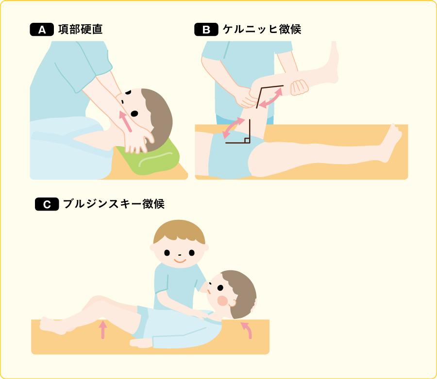 髄膜刺激徴候(文献1, 2)を参考に作成)