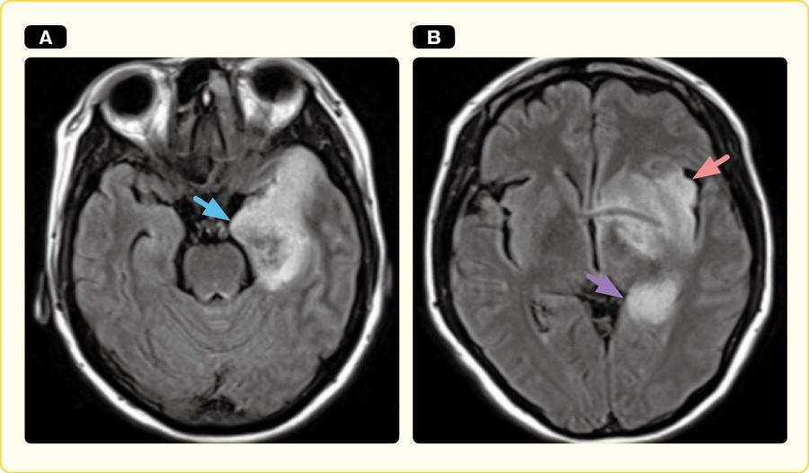 単純ヘルペス脳炎のMRI FLAIR画像