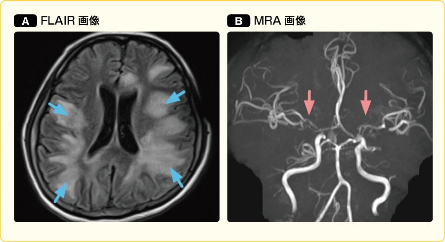 ペニシリン耐性肺炎球菌性(PRSP)髄膜炎のMRI画像