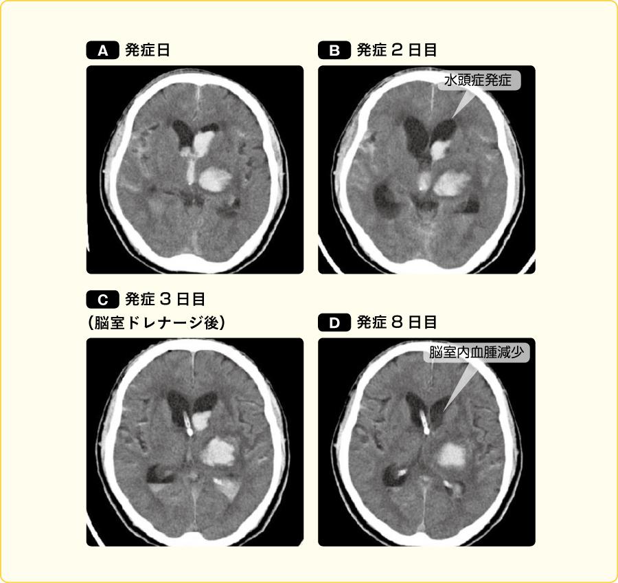 脳室内血腫による非交通性水頭症