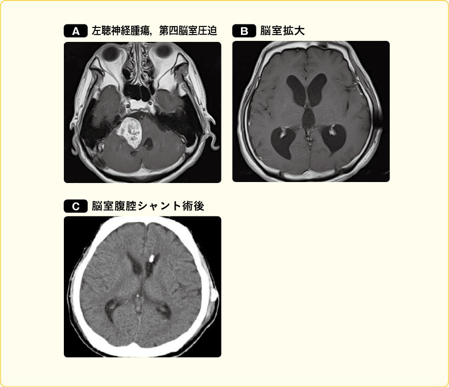 左聴神経腫瘍による非交通性水頭症(第四脳室圧迫および髄液蛋白増加による)