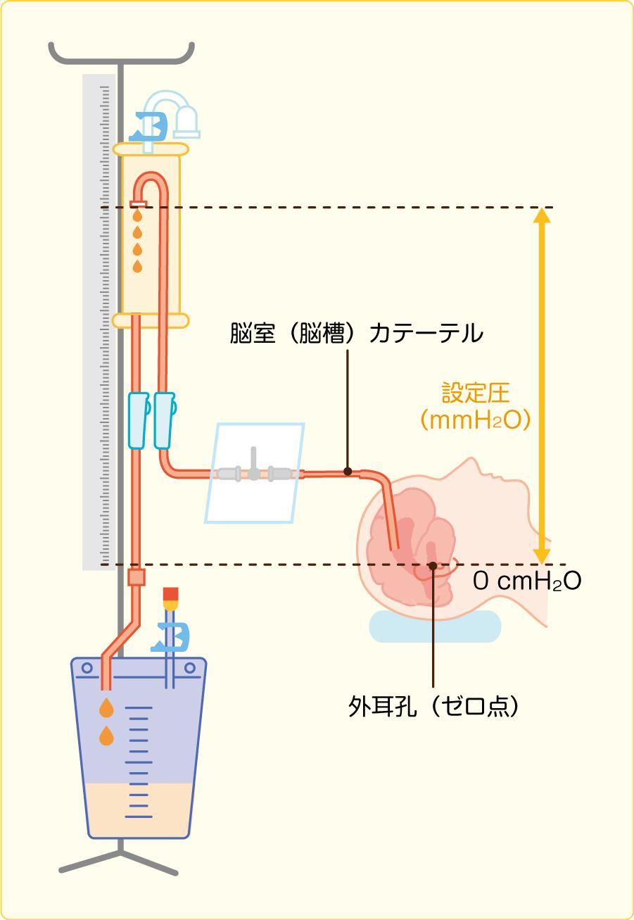 脳室ドレナージ経路と設定圧の基準点