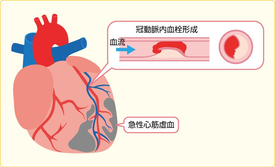 急性冠症候群(ACS)