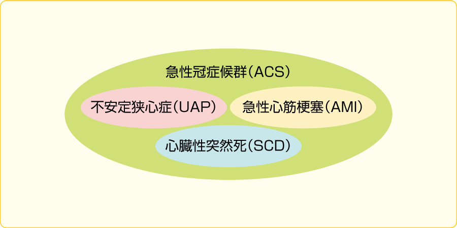 ACSの概念